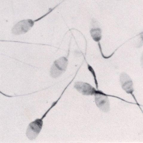 a6ec8_sperm